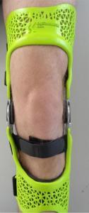 Knie Orthese aus Polyamid im 3D-Druck MJF Verfahren und nachträglicher Lackierung
